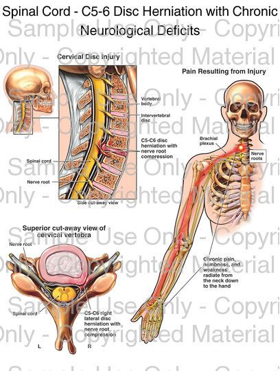 Loading Spinal Cord