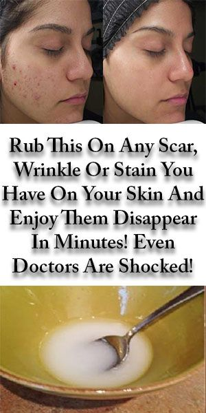 Rub This On Any Scar, Wrinkle Or Stain You Have On Your Skin And Enjoy Them Disa…