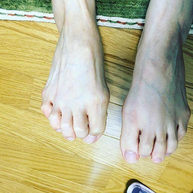 2016/11/18 13:01:31 beststyle758 足に合うシューズになかなか出会えない、、、と始まったレッスン ・ ・ シューズ選びも必要ですが、足の機能の復活も重要です ・ 足裏にアーチを作ればいいんでしょ? →いやいや、それだけではありませんよ ・ 小指って曲がるんだ!! →はい、曲がります。他の指と同じです。 ・ 小指の爪が小さいのは当たり前じゃないの? →いえ、指にはしっかりと爪があるんですよ。 ・ これからどんどん快適なカラダへ変身して頂きます ・ 今回は、60歳を超えた女性 ・ 身体の改善をいくつになっても諦めない。 大切ですよね⭐️ ・ ・ #名古屋市 #千種区 #覚王山 #本山 #池下 #パーソナルトレーニング #パーソナルトレーニングスタジオBESTstyle #家トレ #美尻 #後ろ姿美人 #さとう式リンパケア #ランニング #トレイル #ランニングシューズ #ナイキプラス #ナイキランニング #栄養 #アスリートフードマイスター #足の指 #筋肉 #インソール #中敷作成 #本山 #池下 #自由ヶ丘 #覚王山駅4番出口 #美容 #綺麗…