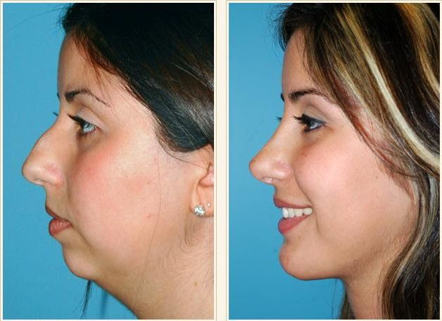 Image Result For Best Rhinoplasty Nose