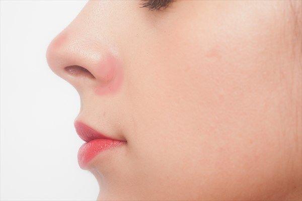 体質による小鼻の赤み