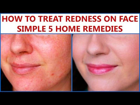 how to treat redness on face simple 5 home remedies