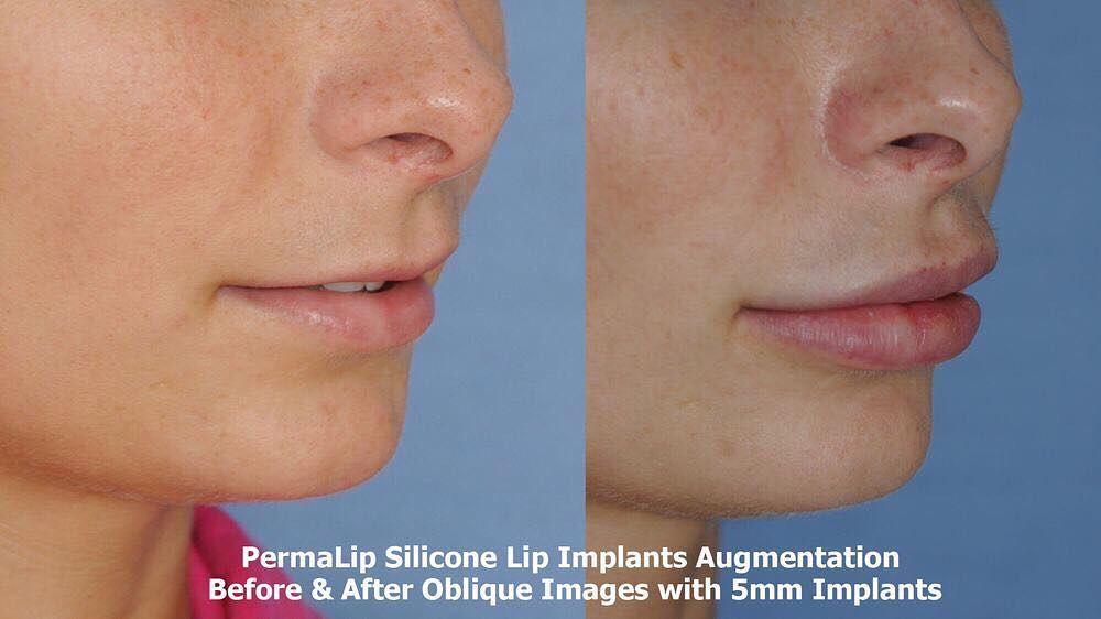 aestheticfacialplasticsurgeryHere is a #lipaugmentation