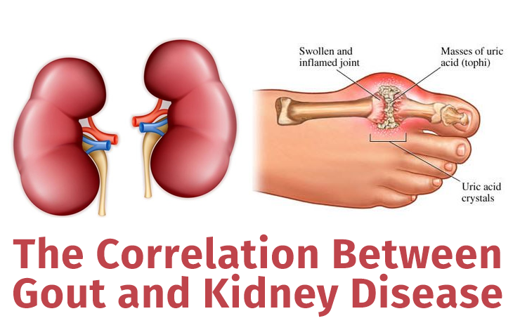 The Correlation Between Gout and Kidney Disease #gout #kidney #disease #kidneydisease #correlation