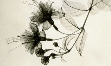 Absolutely stunning! - Vintage Floral X-Rays Show The True Beauty Of Our Favorite Flowers