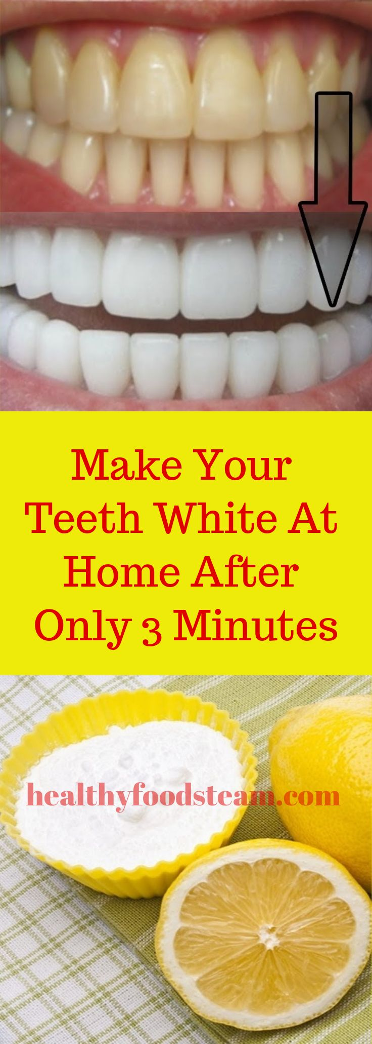 Make Your Teeth White At Home After Only 3 Minutes Detox