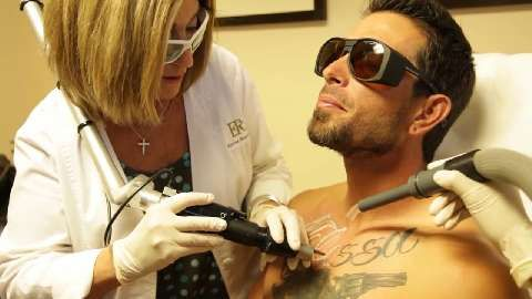 PicoSure Laser Tattoo Removal Treatment - Austin\'s Journey Pt. 1 ...