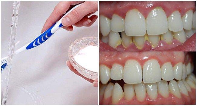 Limpeza Do Tartaro Com Bicarbonato De Sodio Dentes Bicarbonato