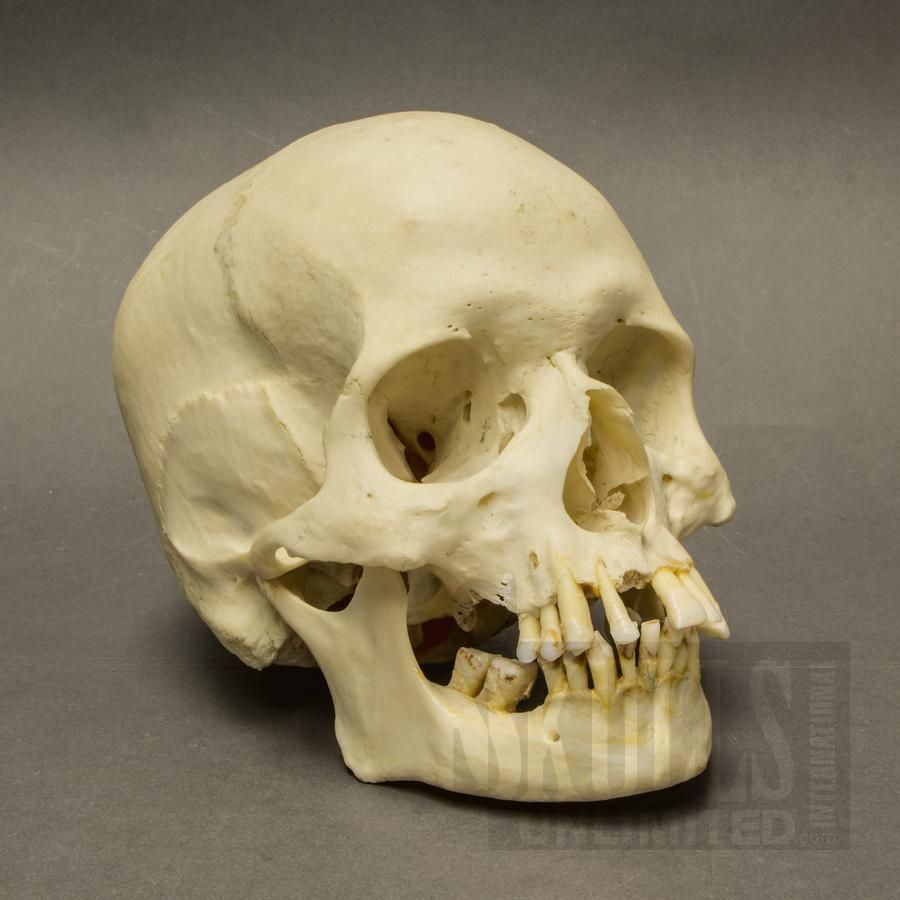 if plastic models aren't your thing, you can purchase a real human, Skeleton