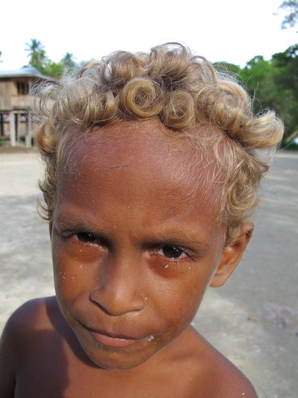 Sudan Net Discussion Board Sdb منتدى سودان نت Melanesian People Black And Blonde Natural Blondes