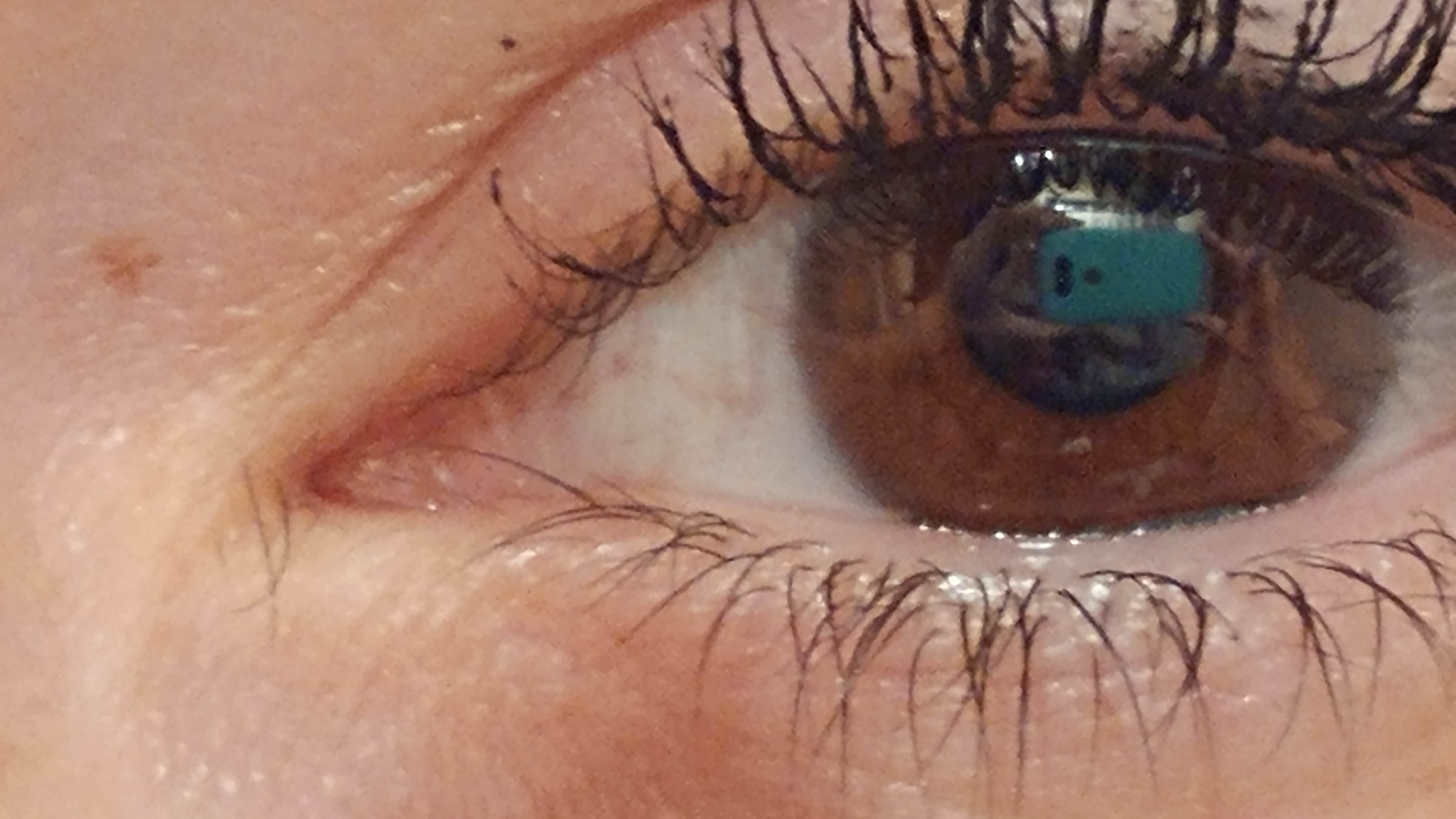 I have eyelashes growing in the inner corner of my eyes ...