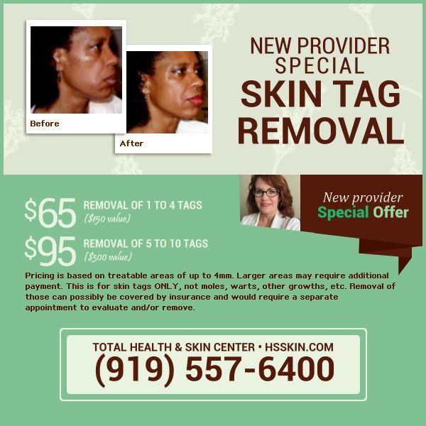Skin Tags Removal Skin Center Skin Health Skin Tag