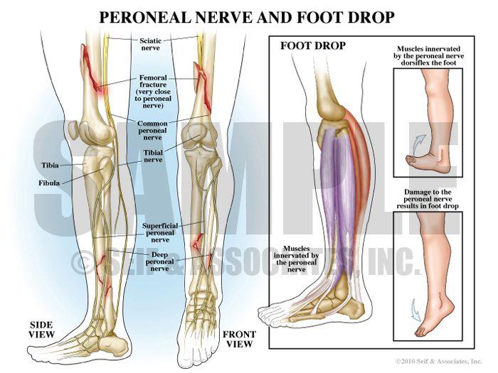 Foot Drop Feet Ankles Pinterest Foot Drop Compartment