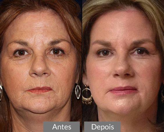 Pin De Tania Mendes Em Peluqueria Y Belleza Botox Produtos Para