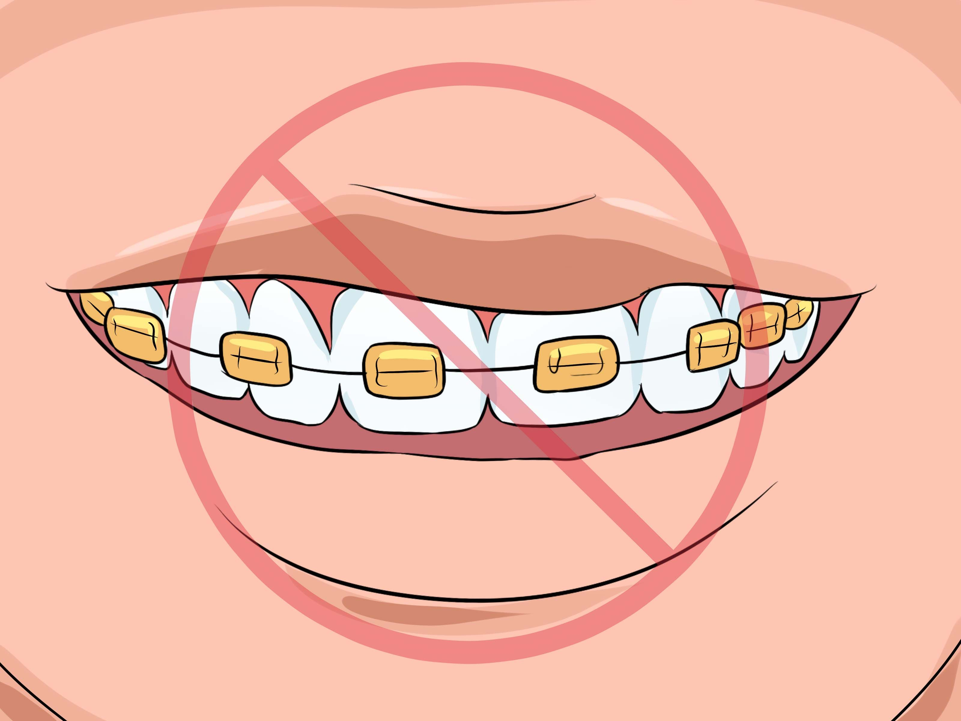 How to choose the color of your braces kids braces