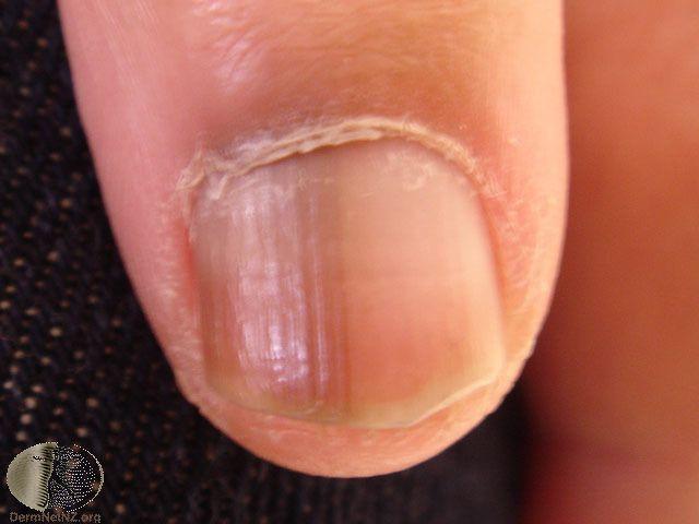 Nail Melanoma | SearchFav | Nails | Pinterest