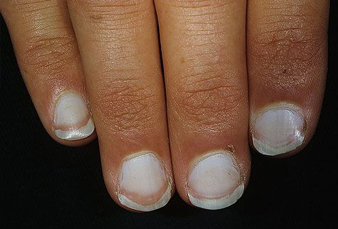 White Nails If The Nails Are Mostly White With Darker Rims This Can Indicate Liver Problems Such As Fingernail Health Signs Nail Health Nail Health Signs