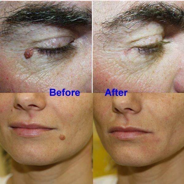 Wart Skin Tag Remover #skintagremedy