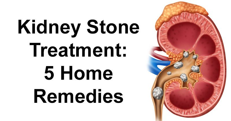 Kidney stone treatment 5 home remedies kidney stones remedies kidney stones are hard deposits made of minerals and salts which form inside your kidneys 1 while they can be painful there are numerous kidney stone ccuart Image collections