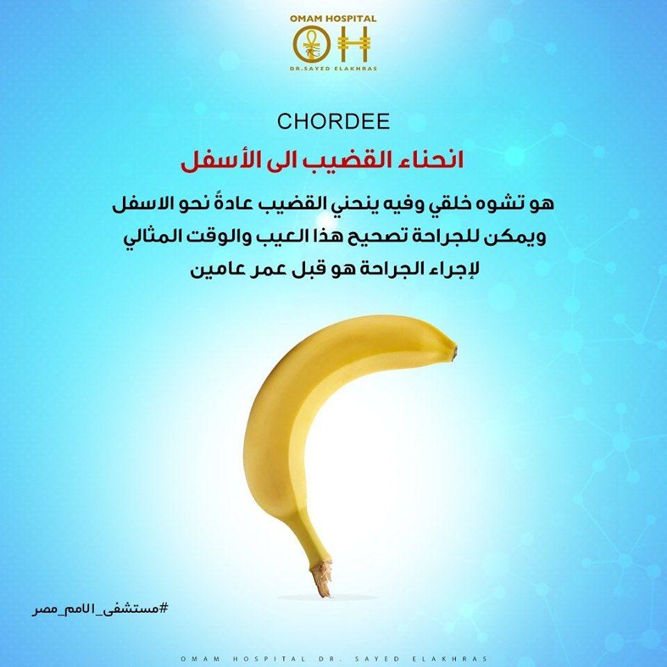 Chordee انحناء القضيب هو عيب خلقي ناتج عن تطور غير طبيعي للقضيب وفيها ينحني القضيب عادة نحو الاسفل ويمكن للجراحة تصحيح هذا العيب ومن يعان Fruit Info Banana