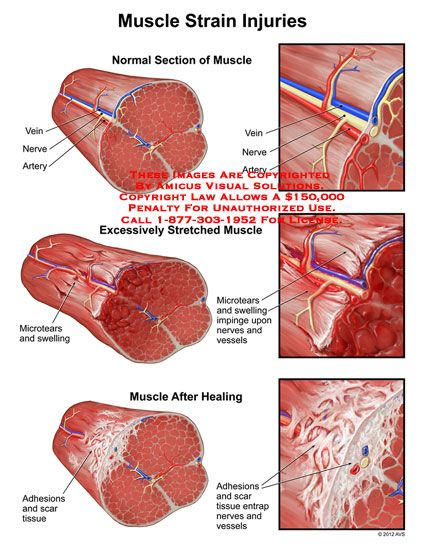 Muscle Strain Injuries | knot, knot, who's there? | Muscle ...