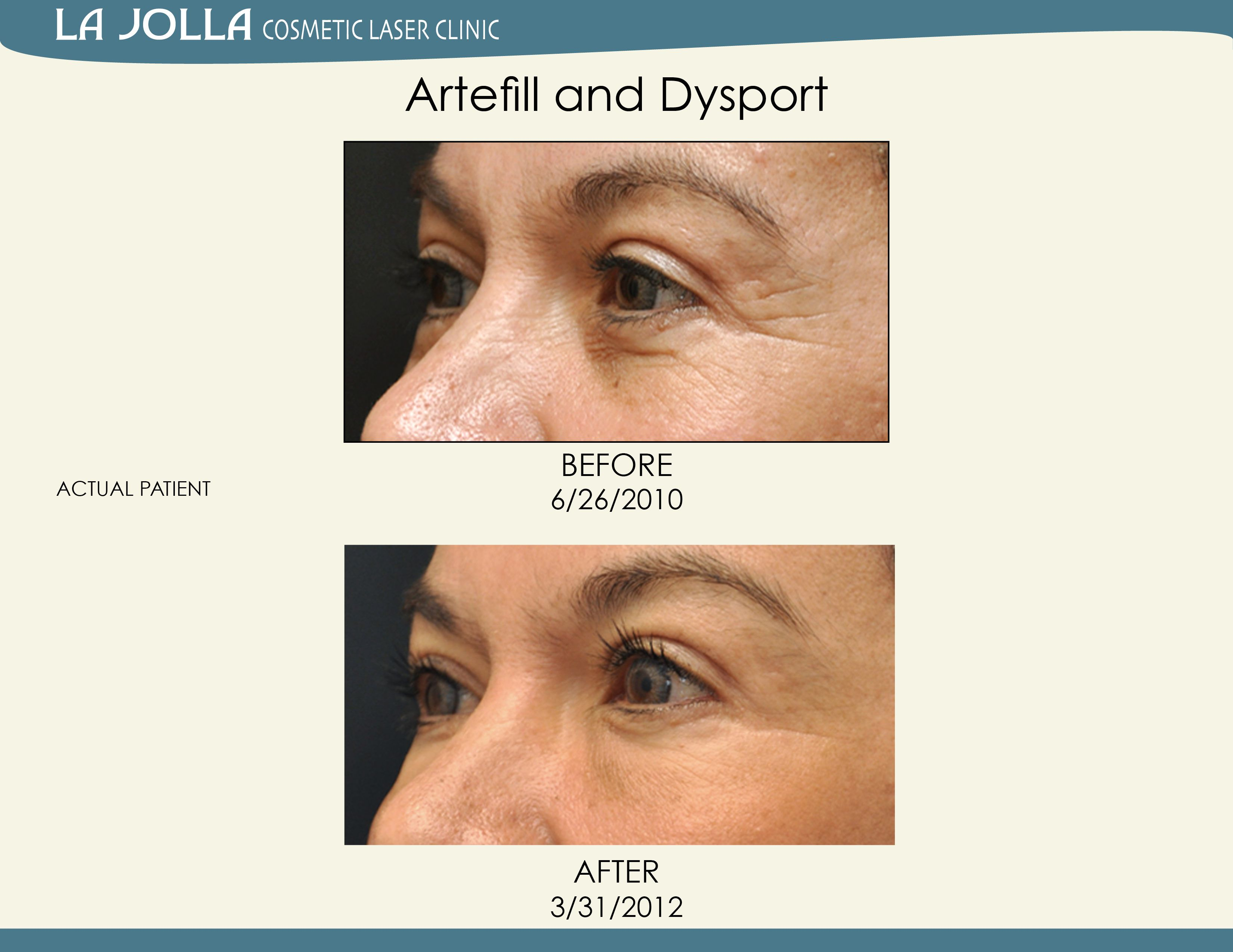 Patient Treated With Artefill And Dysport At La Jolla Cosmetic Laser Clinic Cosmetics Laser Under Eye Fillers Laser Clinics