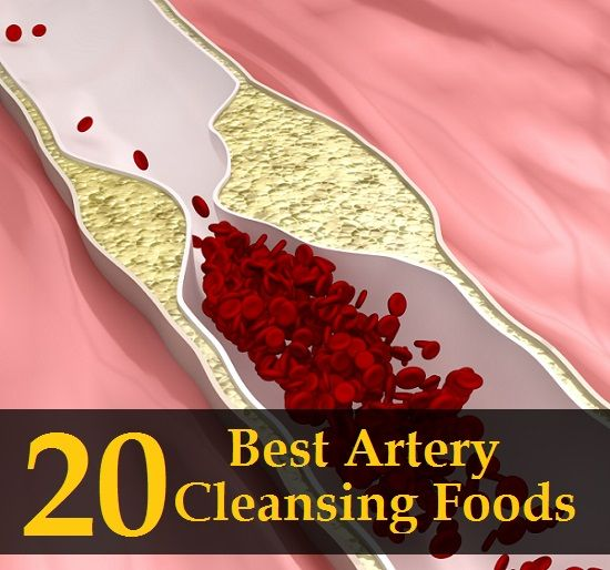 Best Food For Artery Cleansing