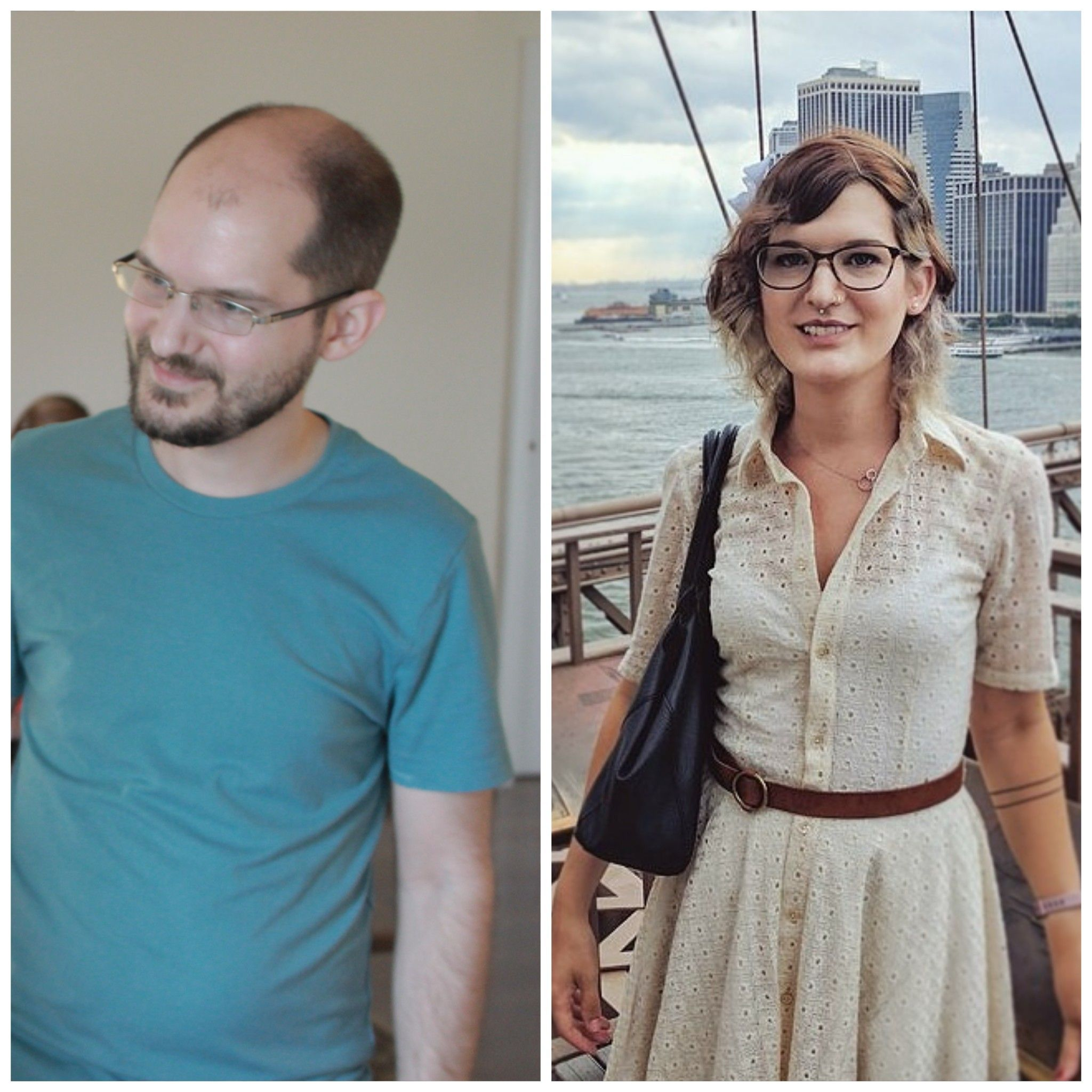 from Amos transgender transition