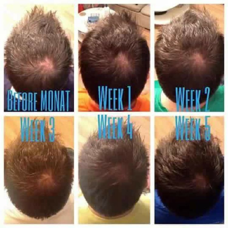 Monat S Classic Confidence System Proven To Stop Hair Thinning And Regrow Hair Hairthinng Me Help Hair Loss Vitamins For Hair Growth Best Hair Loss Shampoo