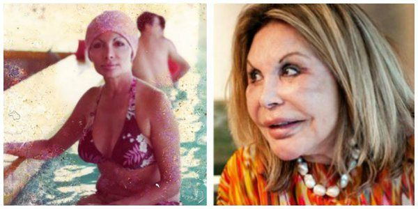 Elsa Patton - Real Housewives of Miami  How can such $$ buy