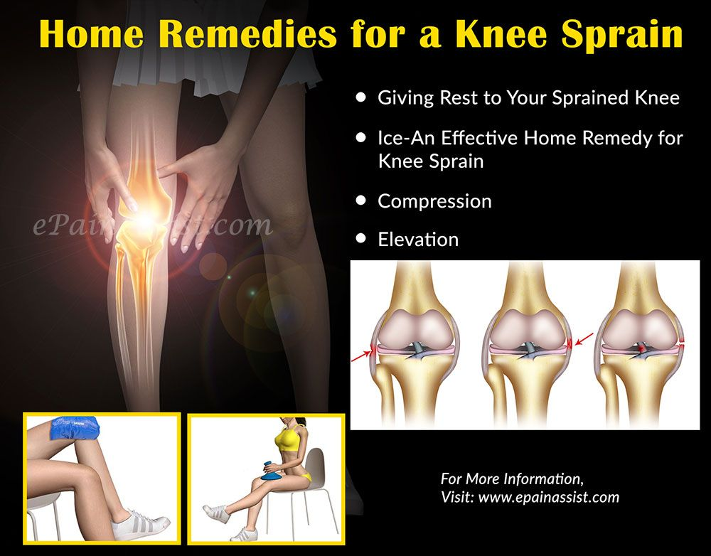 Home Remedies and Exercises for Knee Sprain | Knee Health | Pinterest
