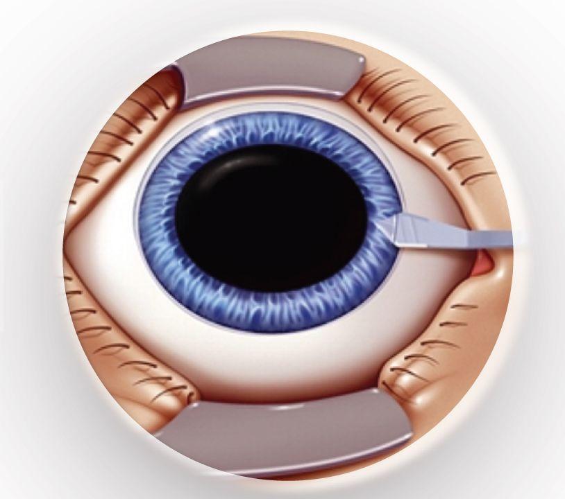 centru medical oftalmologic vitreum