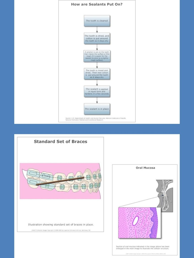 small resolution of dental care and diseases charts and diagrams with private label rights 80 dental care and diseases pictorial charts and diagrams that communicate more