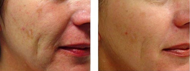 The 3 Skin Signs For Evaluating Patients Cosmetics Laser Natural Skin Care Remedies Skin Care Solutions