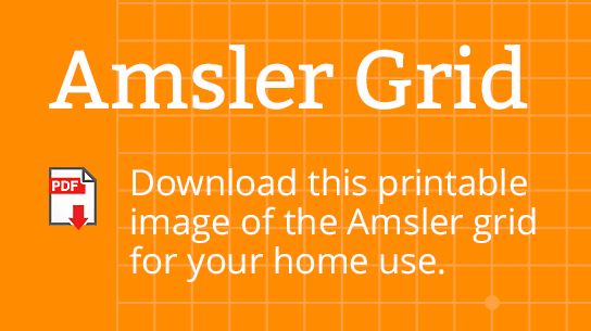 photograph relating to Amsler Grid Printable titled Pin upon Conditioning Treatments