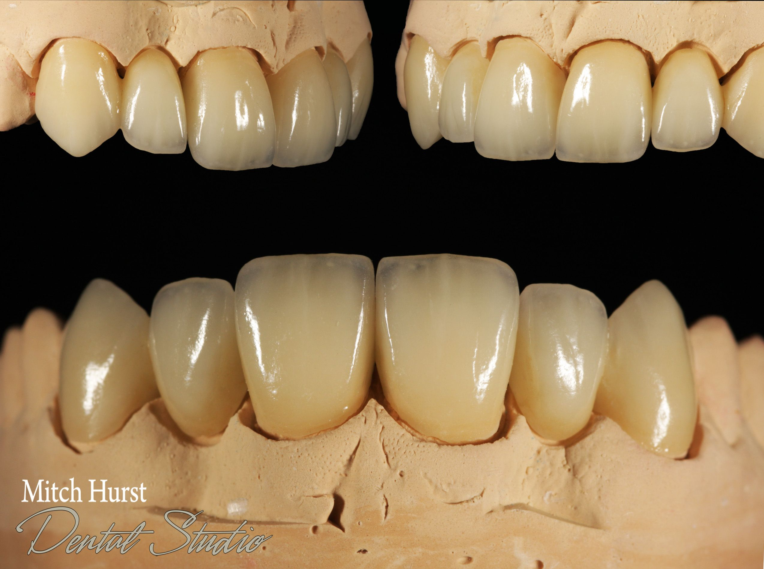 Veneered Centrals With Laterals Cantilevered Off Canines Dental Crowns Smile Dental Artistry Cosmetic Dental Laboratory Dental Dental Veneers
