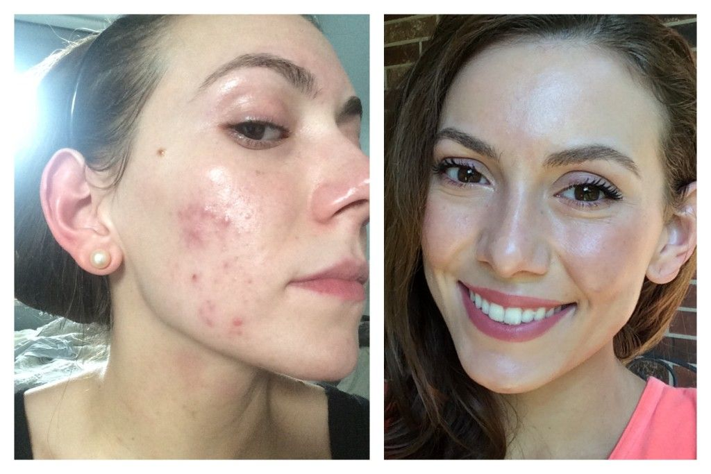 How To Get Rid Of Hormonal Acne On Chin Fast