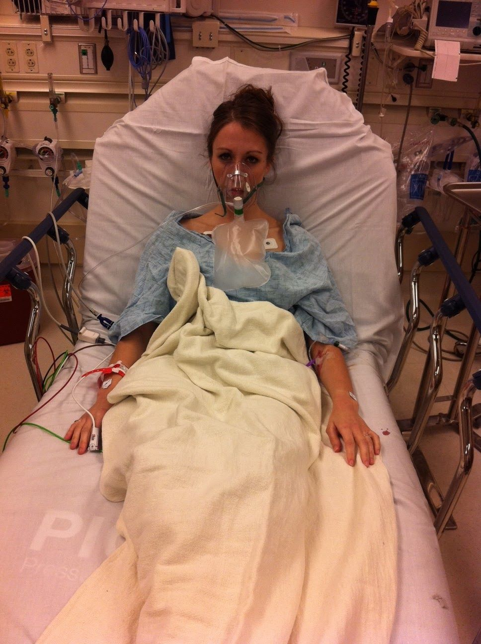 Maggie collapsed lung Lunges, Bruises
