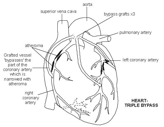 Pin By Kelly Mileham Wiggins On Cardiovascular Nursing Cv Surgery