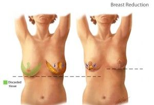 Breast Reduction Cost In Pakistan Breast Reduction