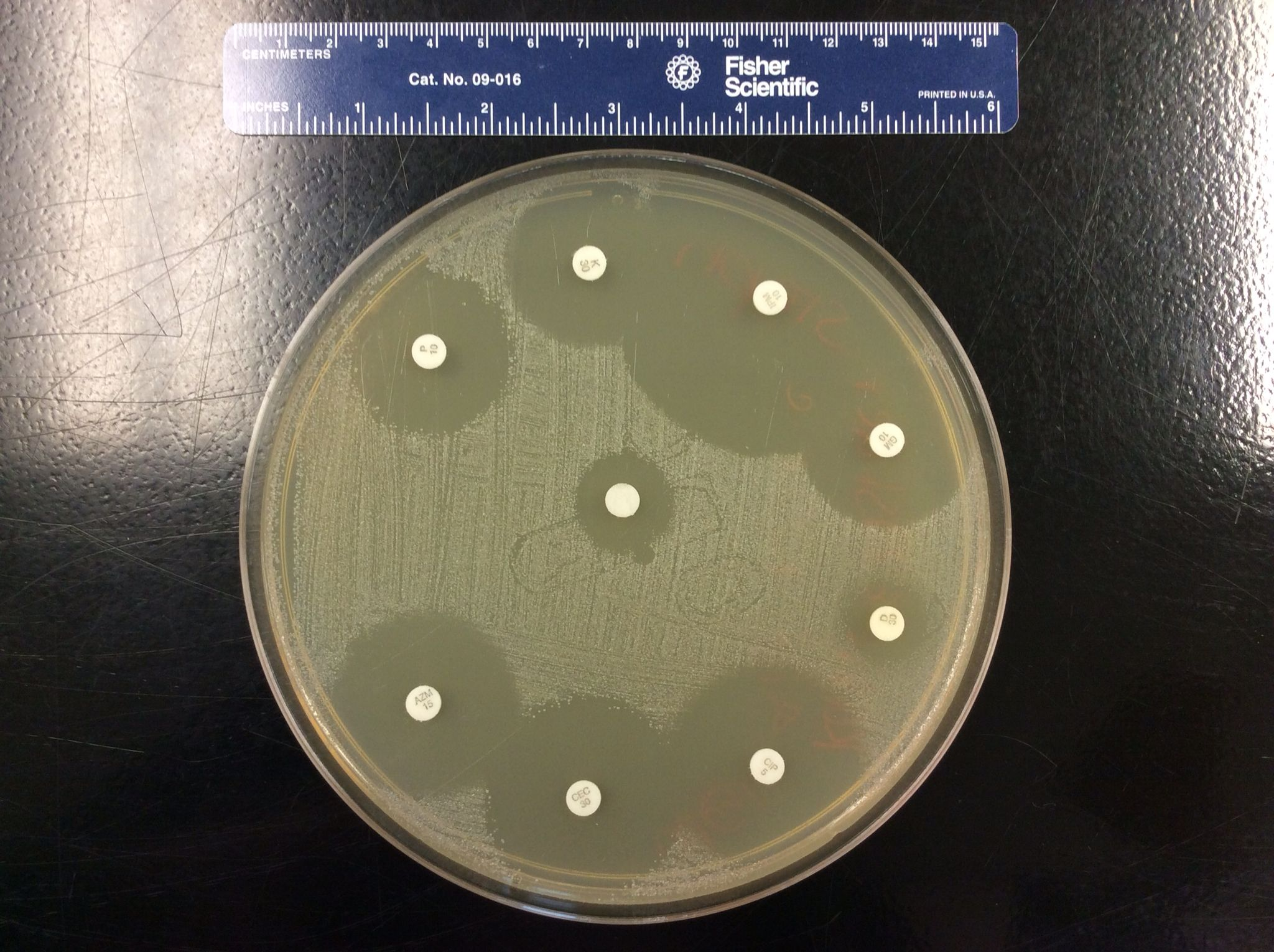 Kirby Bauer Disk Diffusion Test With Staphylococcus