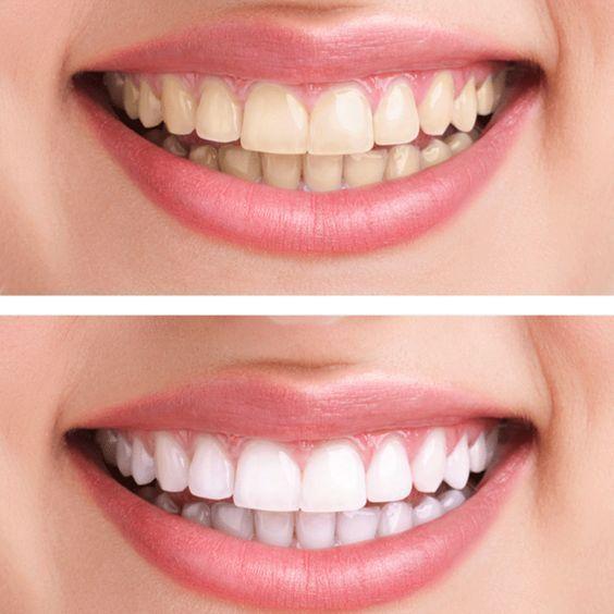 """Dieses Hausmittel macht eure Zähne weißer - """"Weißere Zähne ohne teure Beauty-Produkte: Diese Zahn-Verschönerung könnt ihr ganz leicht selbst herstellen!"""" #teethwhiteningdiywedding"""