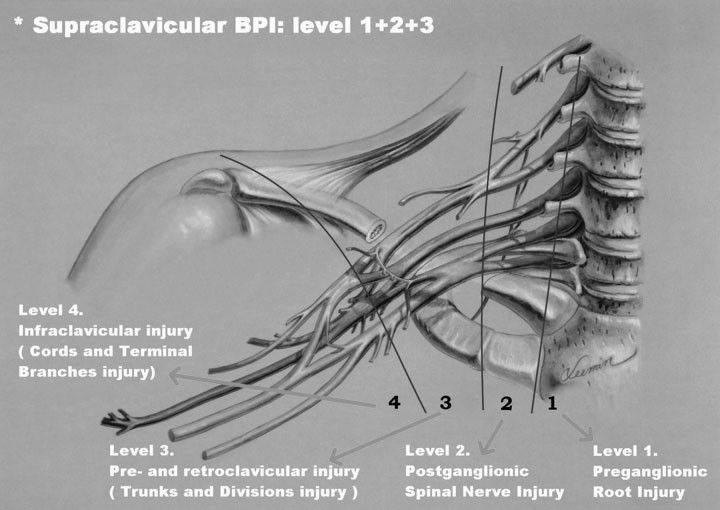 2--cedera-plexus-brachialis