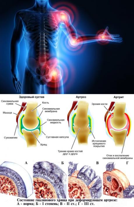 Варикоз суставы щелкает височно-челюстной сустав
