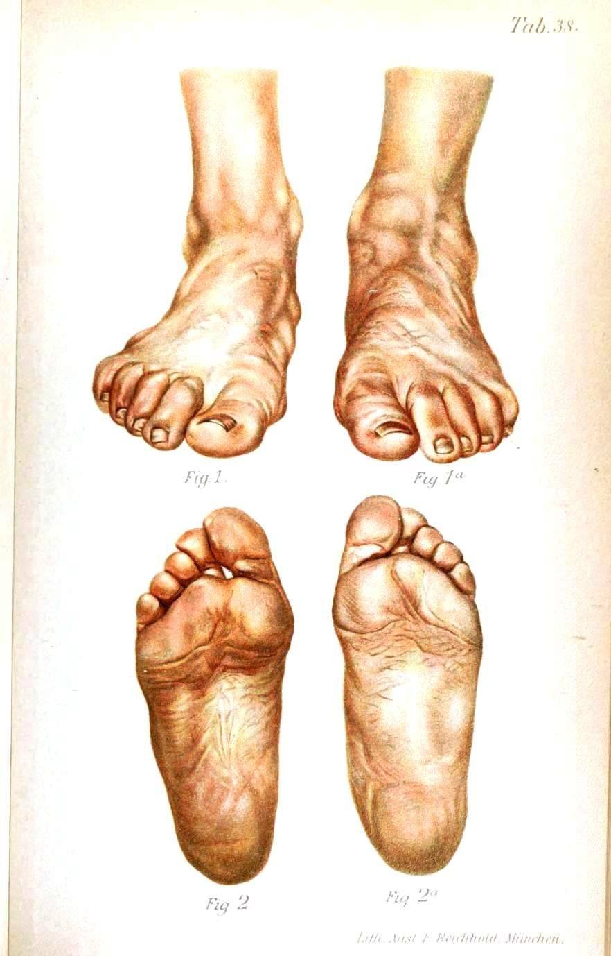 A Sprained Ankle | cuadro persona | Pinterest | Sprained ankle and ...