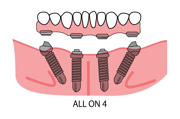 All On 4 Dental Implants In San Diego Dentistry Extreme Smile Makeover Dental Implants Tooth Implant Cost Dental