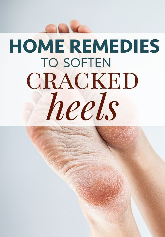 Home Remedies for Cracked Heels #crackedskinonheels Do you suffer from dry, cracked heels even when it's not summer? Cracked skin is normally painful but walking on it is unbearable! Find out how to heal dry skin on your feet naturally with these home remedies for cracked heels. #naturalremedies #homeremedy #homeremedies #skincare #crackedheel #crackedskinonheels Home Remedies for Cracked Heels #crackedskinonheels Do you suffer from dry, cracked heels even when it's not summer? Cracked skin #crackedskinonheels