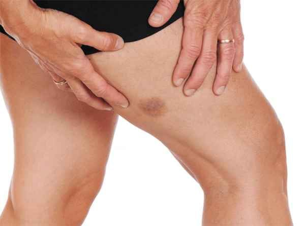 How To Get Rid Of Bruises On Legs Overnight