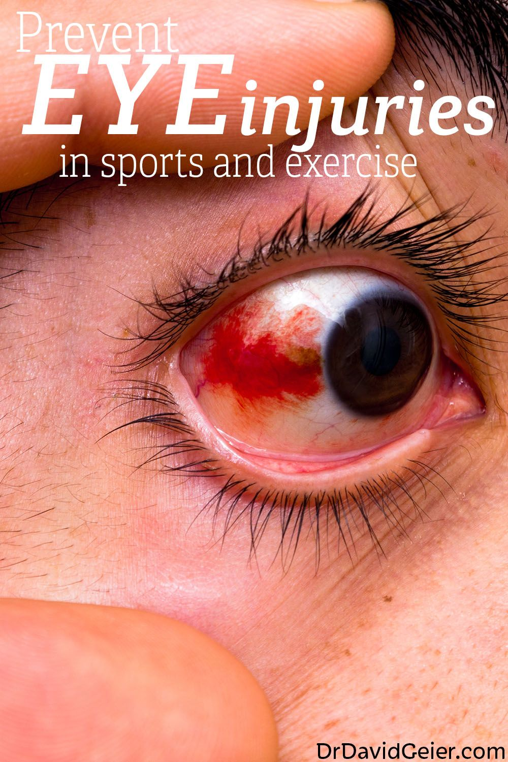 Prevent eye injuries in sports and exercise from