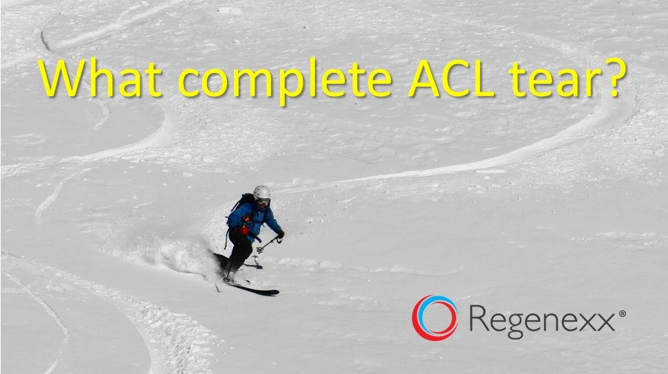 how to avoid acl surgery Acl surgery, Surgery, Meniscus tear